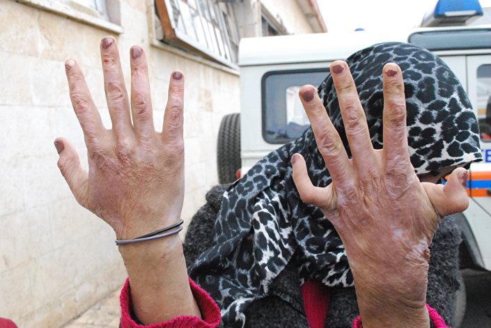 شکنجه زنان حلب