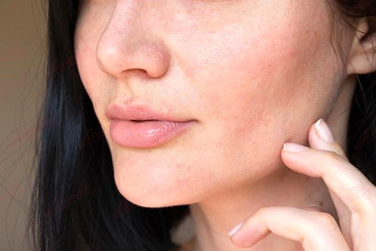 مراقبت پوستی