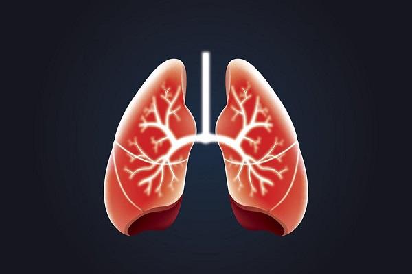 مشکلات تنفسی