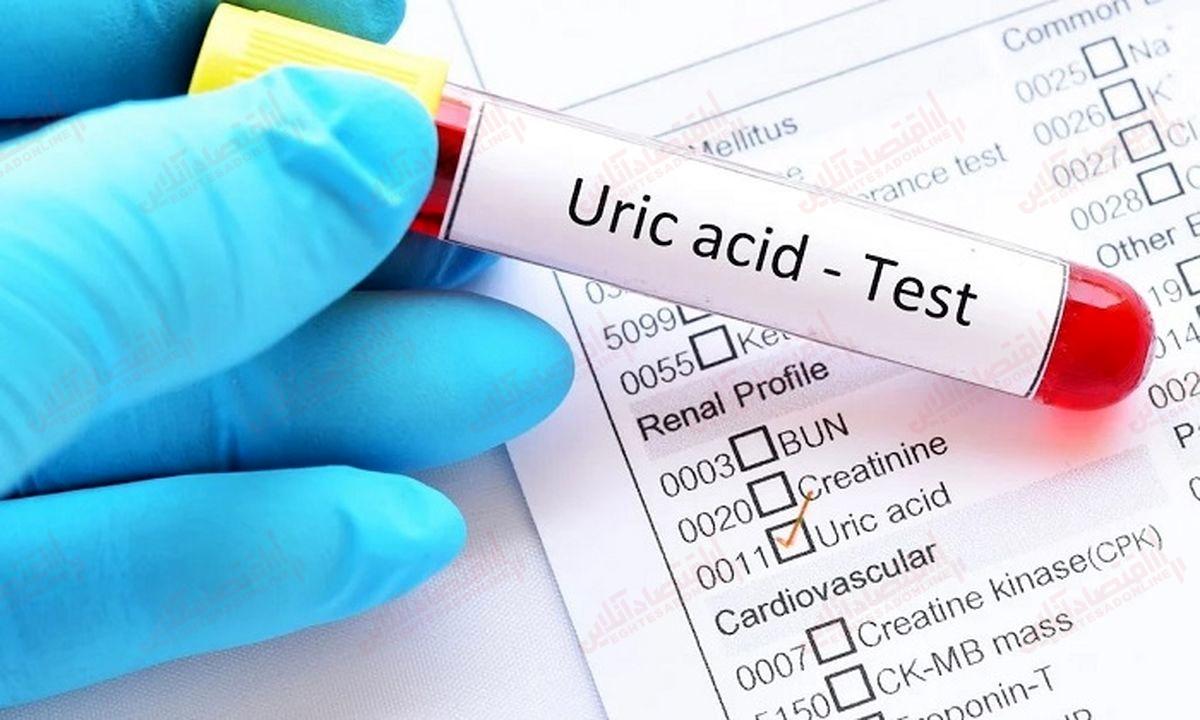 اسید+اوریک