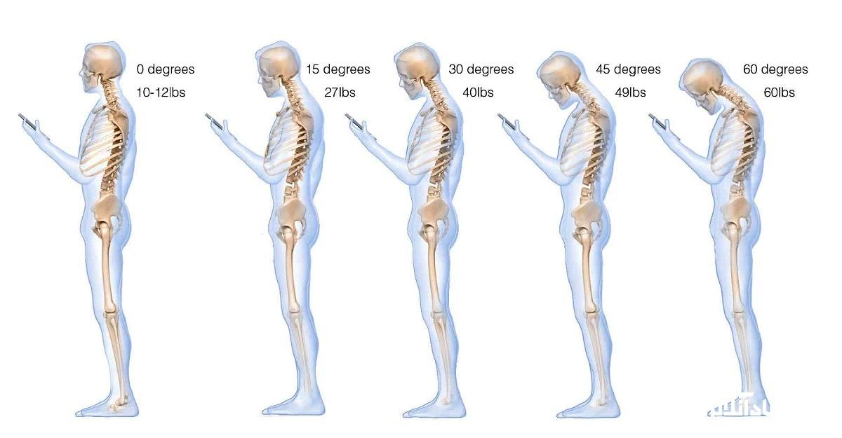تمرینات برای مقابله با تکست نک(text neck)