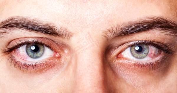 التهاب-عصبی-چشم
