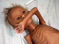 دست و پنجه نرم کردن کودکان یمنی با سوءتغذیه حاد! +تصاویر