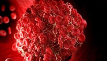 عوامل اکتسابی و ارثی ایجاد لختههای وریدی خون