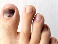 5دلیل سیاه شدن ناخن انگشت پا