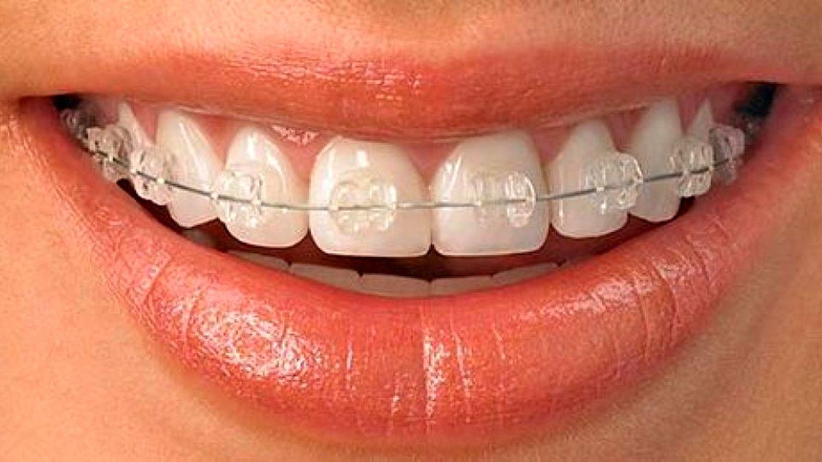 ارتودنسی دندان ها و تاثیر در چهره بیمار