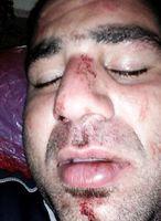 حمله پلیس مهاجرت گینهنو به دو مهاجر ایرانی +عکس