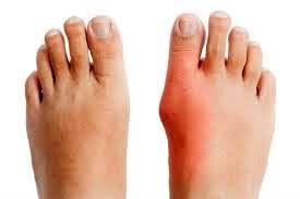 چگونه از انحراف انگشت شست پا جلوگیری کنیم؟