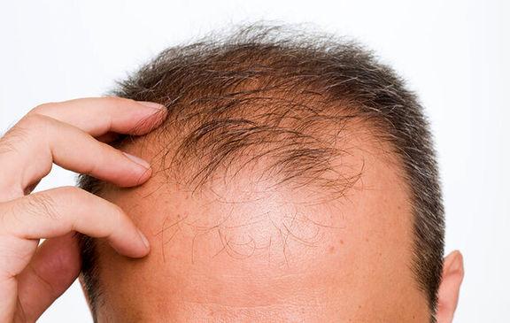 ۷راه مؤثر در کاهش ریزش مو