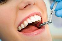 سلامت دهان و دندان با 4مکمل طبیعی