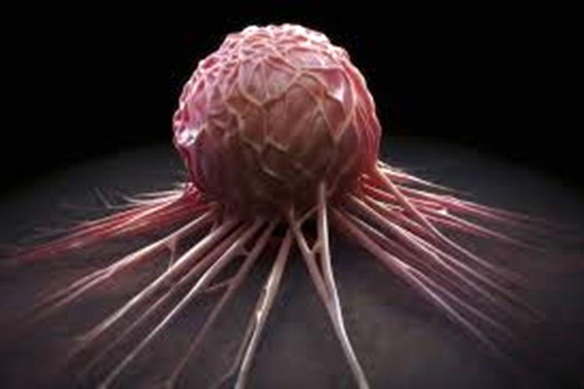 کدام سرطان در ایران درمان شدنی است؟
