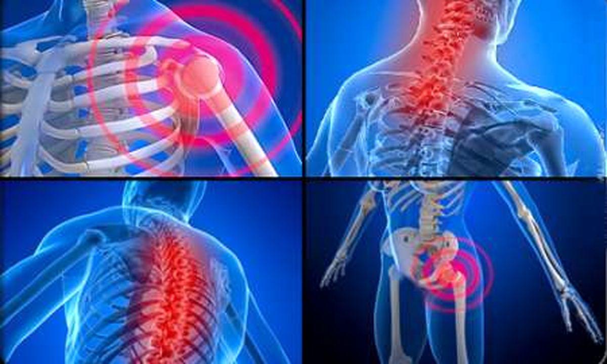 مشکلات اسکلتی و دردهای عضلانی از عوارض ناتمام ابتلا به کرونا