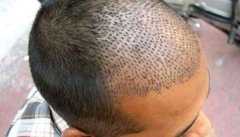 پیشرفته ترین روش کاشت مو و ابرو در کلینیک رز