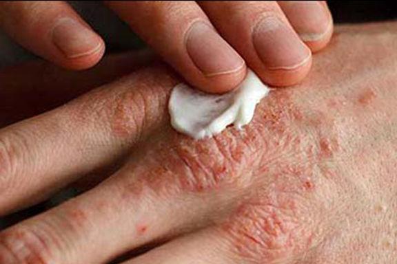 تقویت سیستم ایمنی به درمان بیماری اگزما کمک میکند