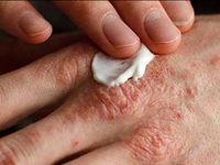 راهکارهای درمانی اگزمای پوست