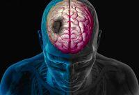 علائم مهم سکته مغزی را بشناسید