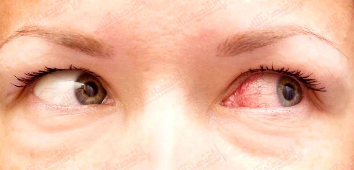 بیماری چشم صورتی چه مدت طول می کشد؟
