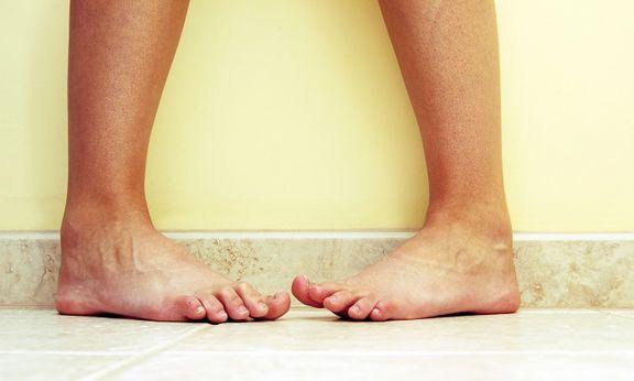 چرا پاها زرد میشوند؟