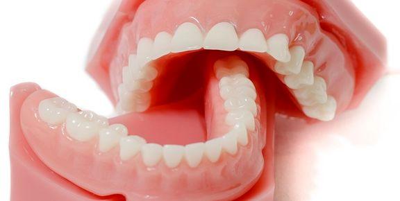 خرید «دندان مصنوعی» چقدر برایتان آب میخورد؟
