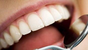 ریشه این دندان پوسیده کجاست؟