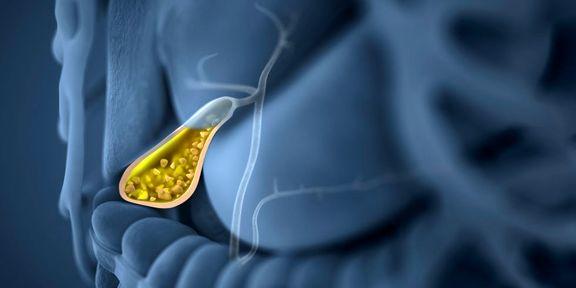 درمان درد پولیپ کیسه صفرا یا جراحی آن با توجه به اندازه پولیپ