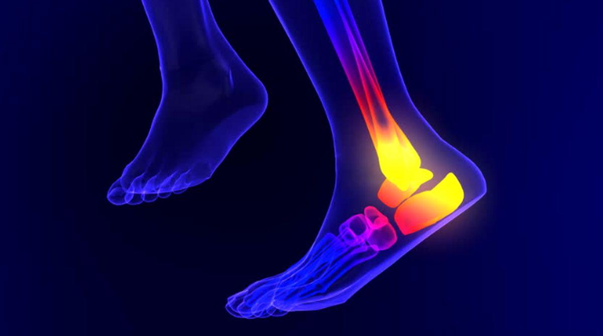 پا درد از علائم بیماری سرخرگ محیطی است