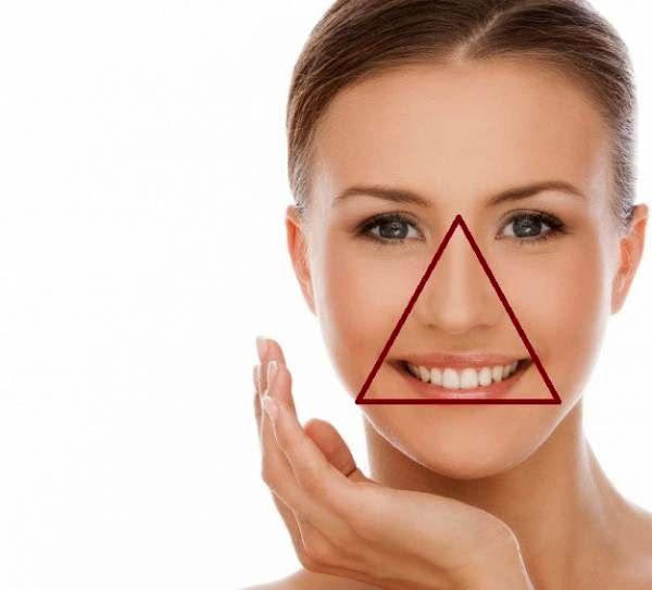 مثلث خطر جوش صورت