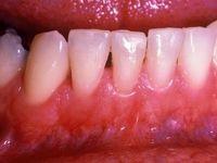 این ۶ راه را برای سلامتی دهان و دندان را جدی بگیرید!