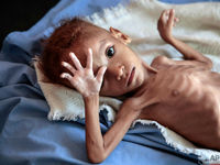 سوءتغذیه عامل مهم بیماری و مرگ در سراسر جهان