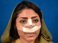 چرایی گسترش جراحیهای زیبایی بین زنان ایرانی