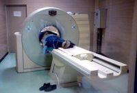 اشعه سی تی اسکن منجر به سرطان تیروئید میشود