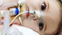 بیماری که با ریه های کودکان سر جنگ دارد + عکس