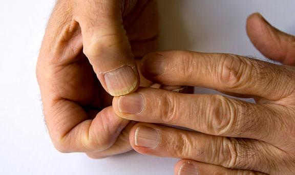 تشخیص دیابت با بررسی سلامت ناخنها