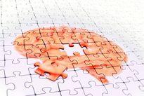 آلزایمر از چند سالگی شروع میشود؟