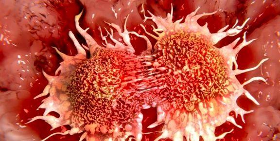راههای مقابله با سرطان سینه در «زنان»