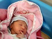 عجیبترین نوزاد دنیا در قرچک بدنیا آمد +عکس