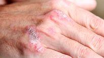 عامل موثر در بروز بیماری پسوریازیس شناسایی شد