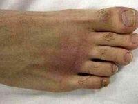 علائم آرتروز پا چیست؟
