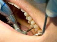 درمان ایمپلنت از ۱۸ سال امکان پذیر است