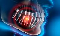 رابطه دندان خراب با درد معده چیست؟
