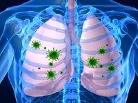 راهکاری برای خلاصی از عفونت ریه