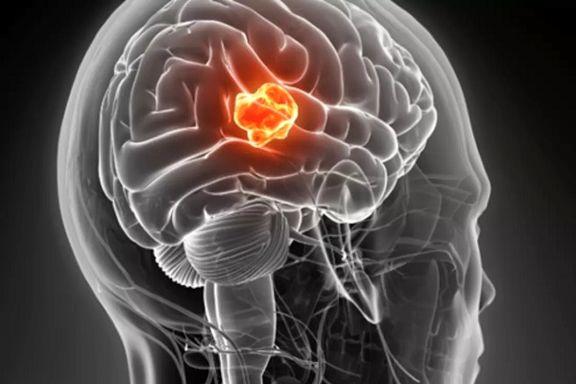 پژوهشها درباره شیوع یک تومور مغزی خاص در ایران