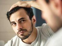 5نکته مهم برای پیشگیری از ریزش مو