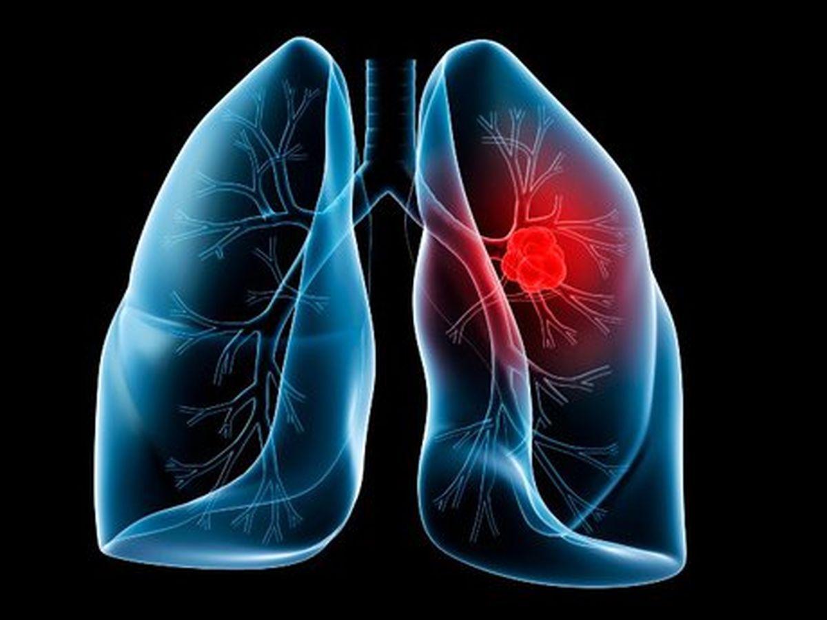 یافته های جدید و زودبازده در درمان سرطان ریه