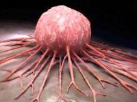 جعبه سیاه تومورهای سرطانی کشف شد