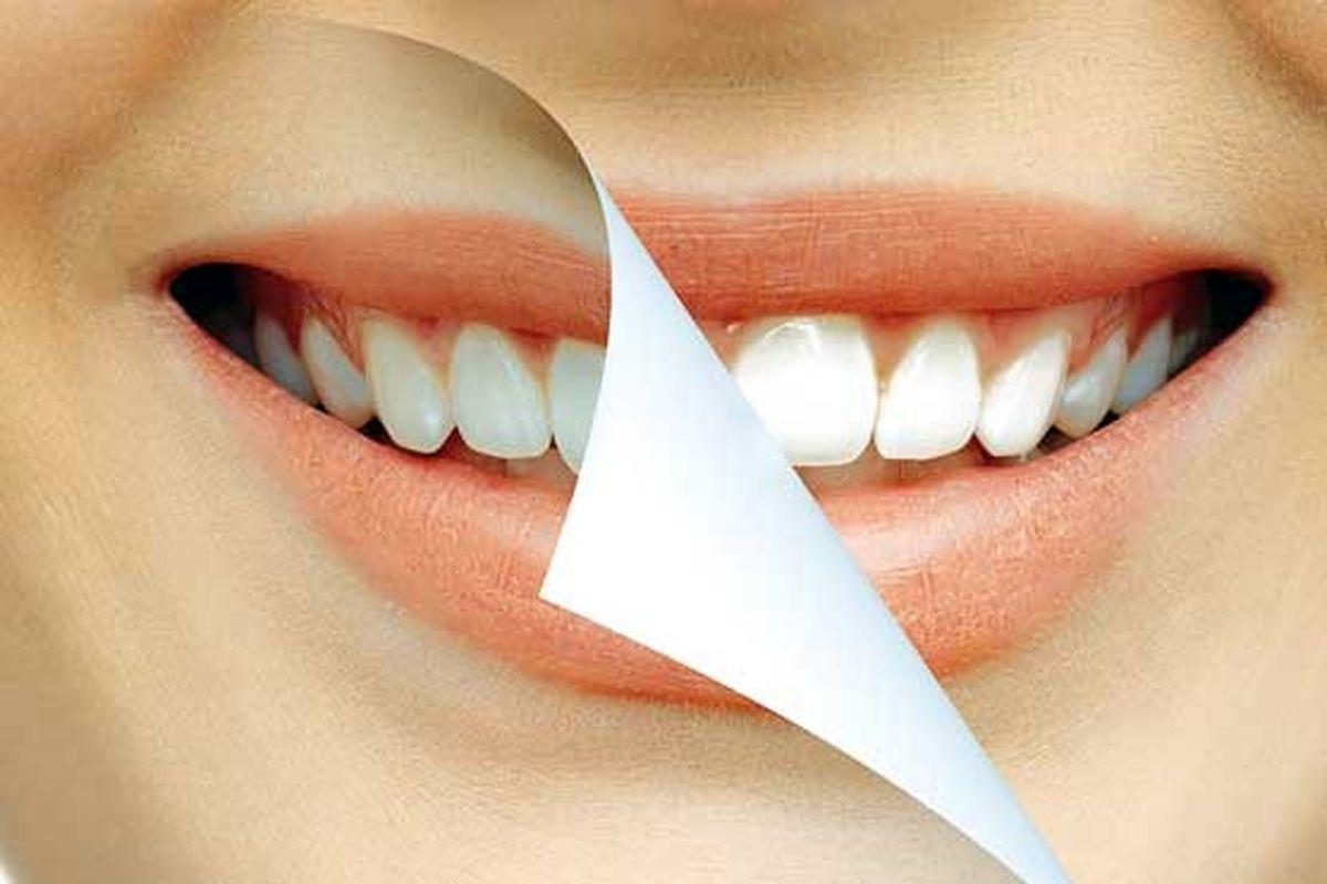 خوراکیهای نامهربان با دندان
