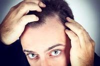 سفیدی مو زنگ هشداری برای مردان