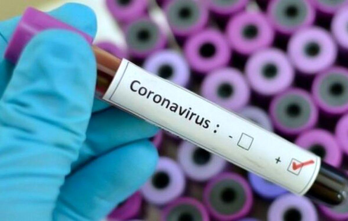 دردسرهای تشخیص علائم بالینی کرونا و آنفلوانزا در پاییز