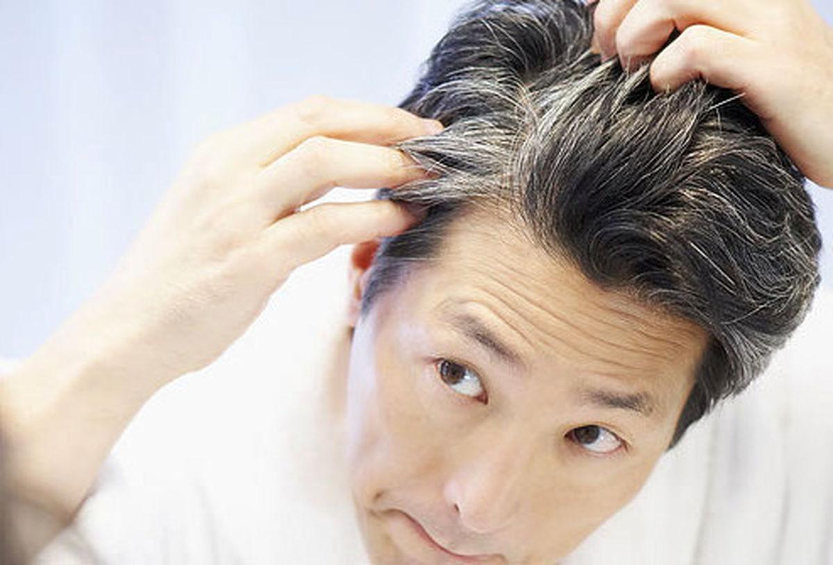 علت سفیدی زودرس موها چیست؟