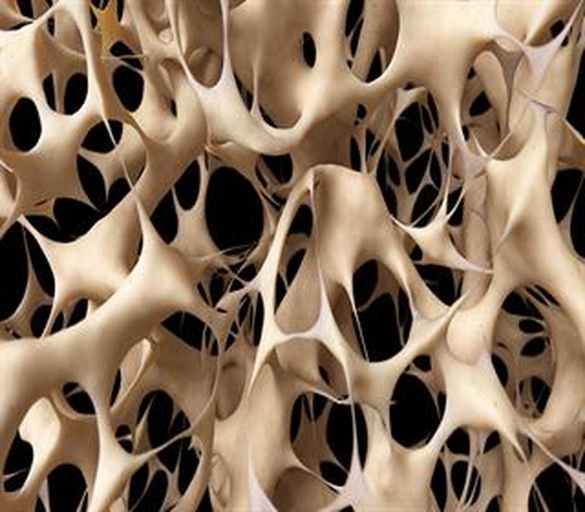 ۶ عادت روزانه سالم برای پیشگیری از پوکی استخوان!